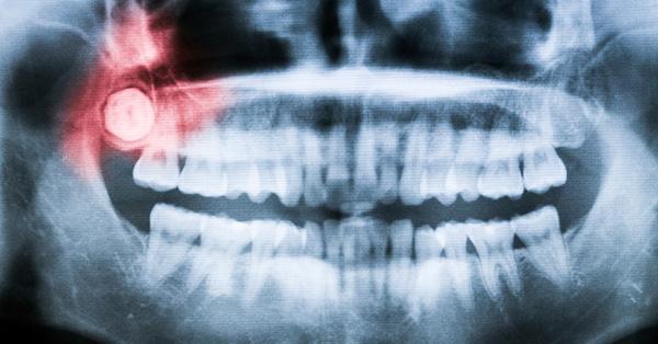 wisdom_teeth_OPT