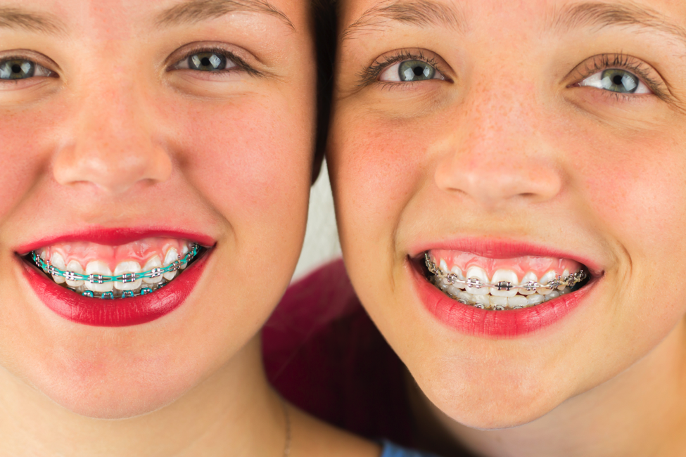 Surgical Orthodontics: The 3 Kinds A Patient Is Most Likely to Experience