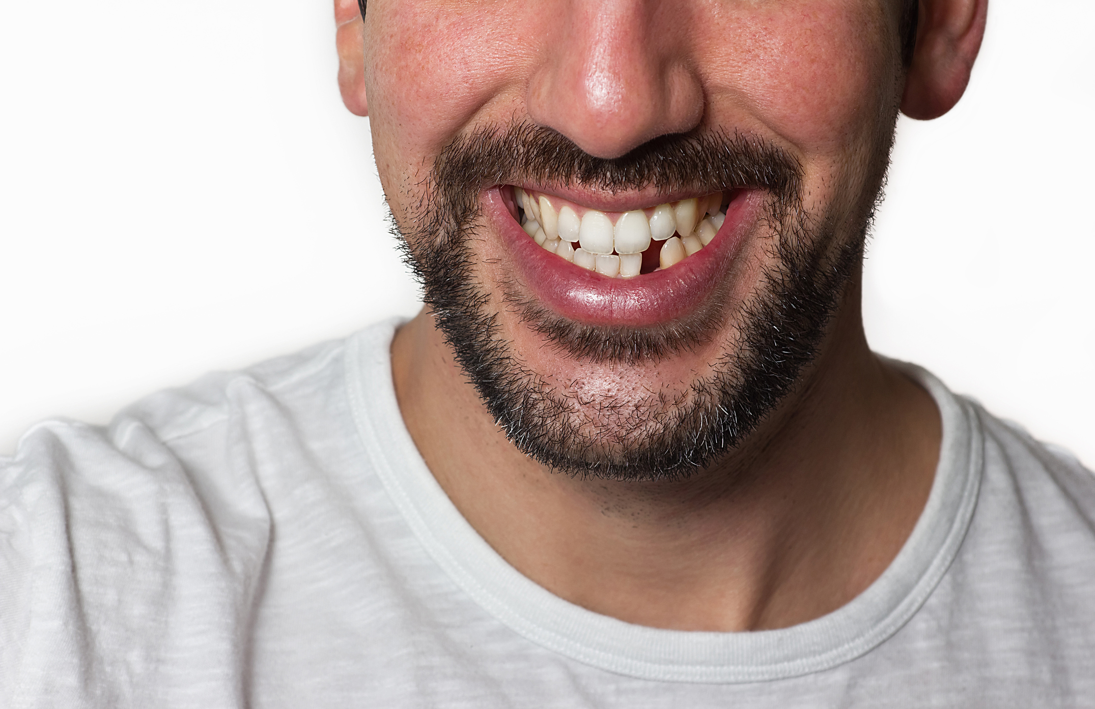 What to Do if You Lose a Single Tooth