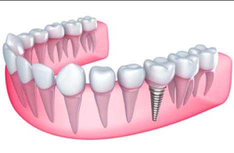 posterior dental implant