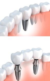 single fixed bridge dental implant