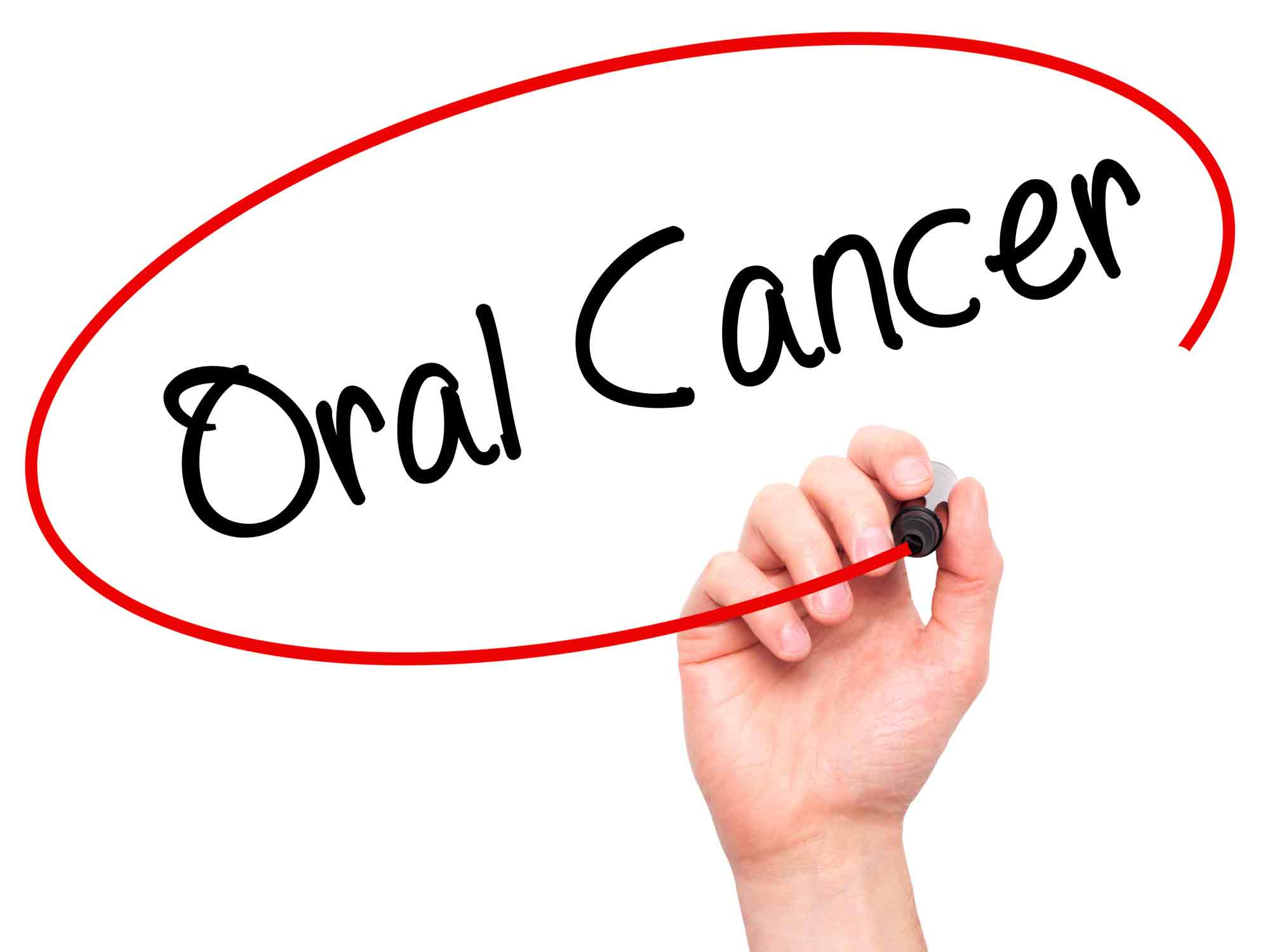 Common Questions About Oral Cancer